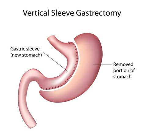 Gastric Sleeve Sleeve Gastrectomy Lap Band To Gastric Sleeve